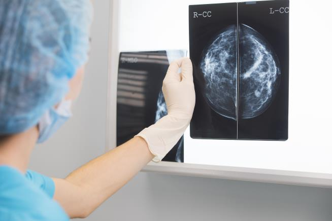Breast cancer survivors may have lingering mental health effects