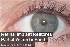 Retinal Implant Restores Partial Vision to Blind