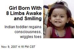 Girl Born With 8 Limbs Awake and Smiling