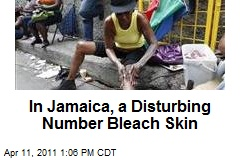 In Jamaica, a Disturbing Number Bleach Skin