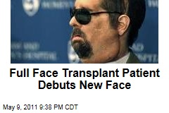 Full Face Transplant Patient Dallas Wiens Debuts New Face