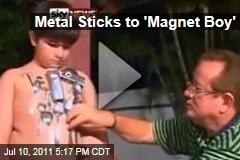 Metal Sticks to 'Magnet Boy' Paulo David Amorim