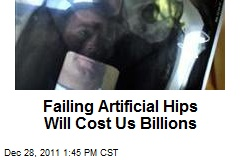 Failing Artificial Hips Will Cost Us Billions