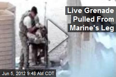 Live Grenade Pulled From Marine's Leg