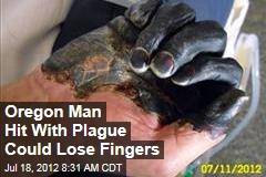 Oregon Man Hit With Plague Could Lose Fingers