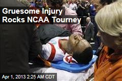 Player Suffers Gruesome Injury During NCAA Tournament