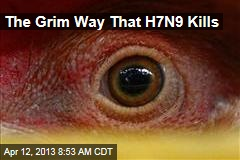 The Grim Way That H7N9 Kills