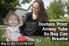 Doctors 'Print' Airway Tube So Boy Can Breathe