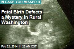 Cluster of fatal birth defects a mystery in rural Washington