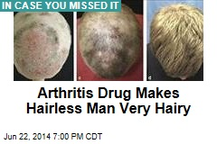 Arthritis Drug Makes Hairless Man Very Hairy