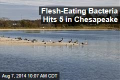 Flesh-Eating Bacteria Hits 5 in Chesapeake