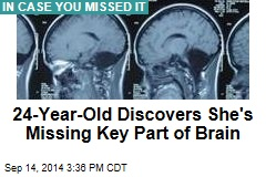 24-Year-Old Discovers She's Missing Key Part of Brain