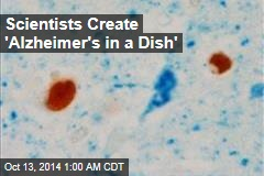 Scientists Create 'Alzheimer's in a Dish'