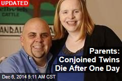 Dad of Conjoined Twins: 'Pray for Us'