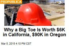 Why a Big Toe Is Worth $6K in California, $90K in Oregon
