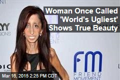 Woman Once Called 'World's Ugliest' Shows True Beauty