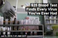 $25 Blood Test Finds Every Virus You've Ever Had