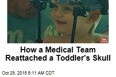 How a Medical Team Reattached a Toddler's Skull