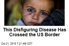 This Disfiguring Disease Has Crossed the US Border