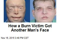How a Burn Victim Got Another Man's Face