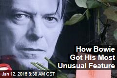 How Bowie Got His Most Unusual Feature