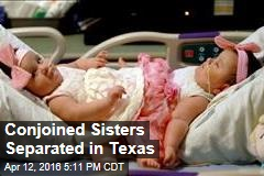 Conjoined Sisters Separated in Texas