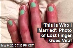 Sweet Photo Goes Viral After Wife Loses Finger