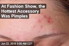 At Fashion Show, the Hottest Accessory Was Pimples