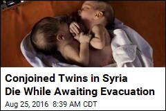 Conjoined Twins in Syria Die While Awaiting Evacuation
