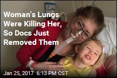 Woman Survives 6 Days Without Lungs