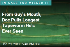 From Guy's Mouth, Doc Pulls Longest Tapeworm He's Ever Seen
