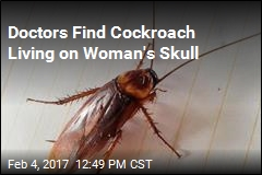 Cockroach Climbs Up Woman's Nose, Hangs Out on Her Skull