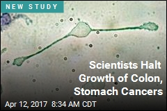 Scientists Halt Growth of Colon, Stomach Cancers