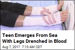 Teen Emerges From Sea With Legs Drenched in Blood