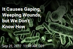 It Causes Gaping, Weeping Wounds, but We Don't Know How