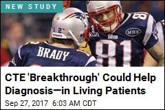 CTE 'Breakthrough' Could Help Diagnosis—in Living Patients