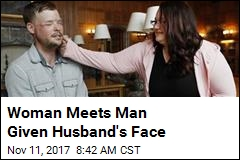 Woman Meets Man Given Husband's Face
