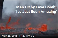 Man Hit by Lava Bomb: 'It's Just Been Amazing'