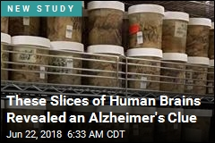 These Slices of Human Brains Revealed an Alzheimer's Clue