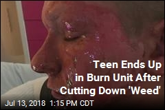 Teen Cuts a 'Weed,' Ends Up in Burn Unit