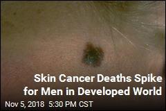 Skin Cancer Deaths Spike for Men in Developed World