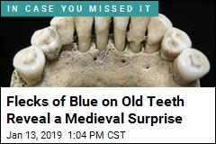 Flecks of Blue on Old Teeth Reveal a Medieval Surprise