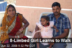 8-Limbed Girl Learns to Walk