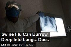 Swine Flu Can Burrow Deep Into Lungs: Docs