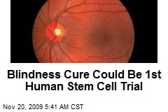 Blindness Cure Could Be 1st Human Stem Cell Trial