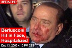Berlusconi Hit in Face, Hospitalized