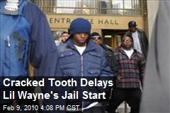 Cracked Tooth Delays Lil Wayne's Jail Start