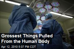 Grossest Things Pulled From the Human Body