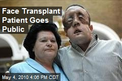 Face Transplant Patient Goes Public