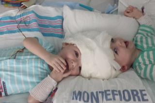 Twins Conjoined in Highly Rare Way Separated in NYC